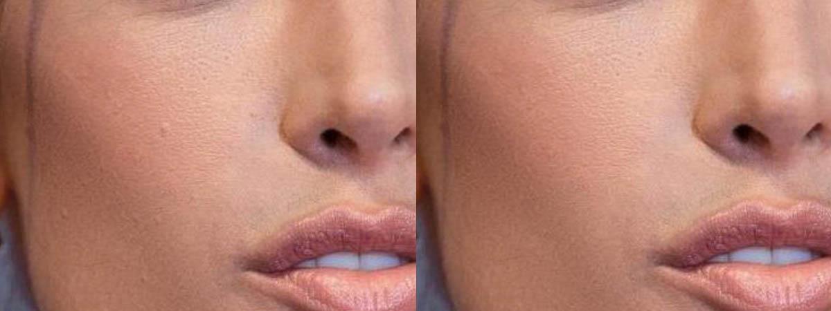 Как сделать гладкую кожу